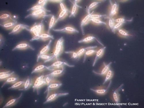 Seimatosporium berckmansii spores. Photo by Fanny Iriarte